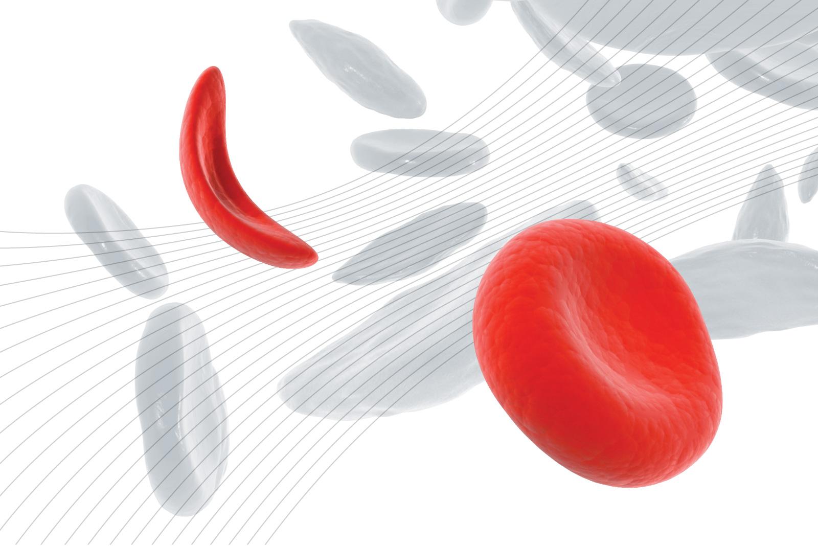 Le Emoglobinopatie congenite: aggiornamenti scientifici e organizzazione dei servizi per la sickle cell disease